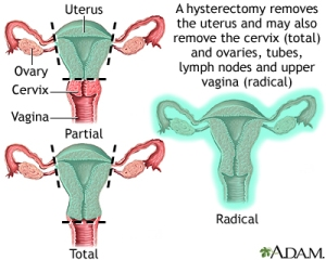 hysterectomy-types